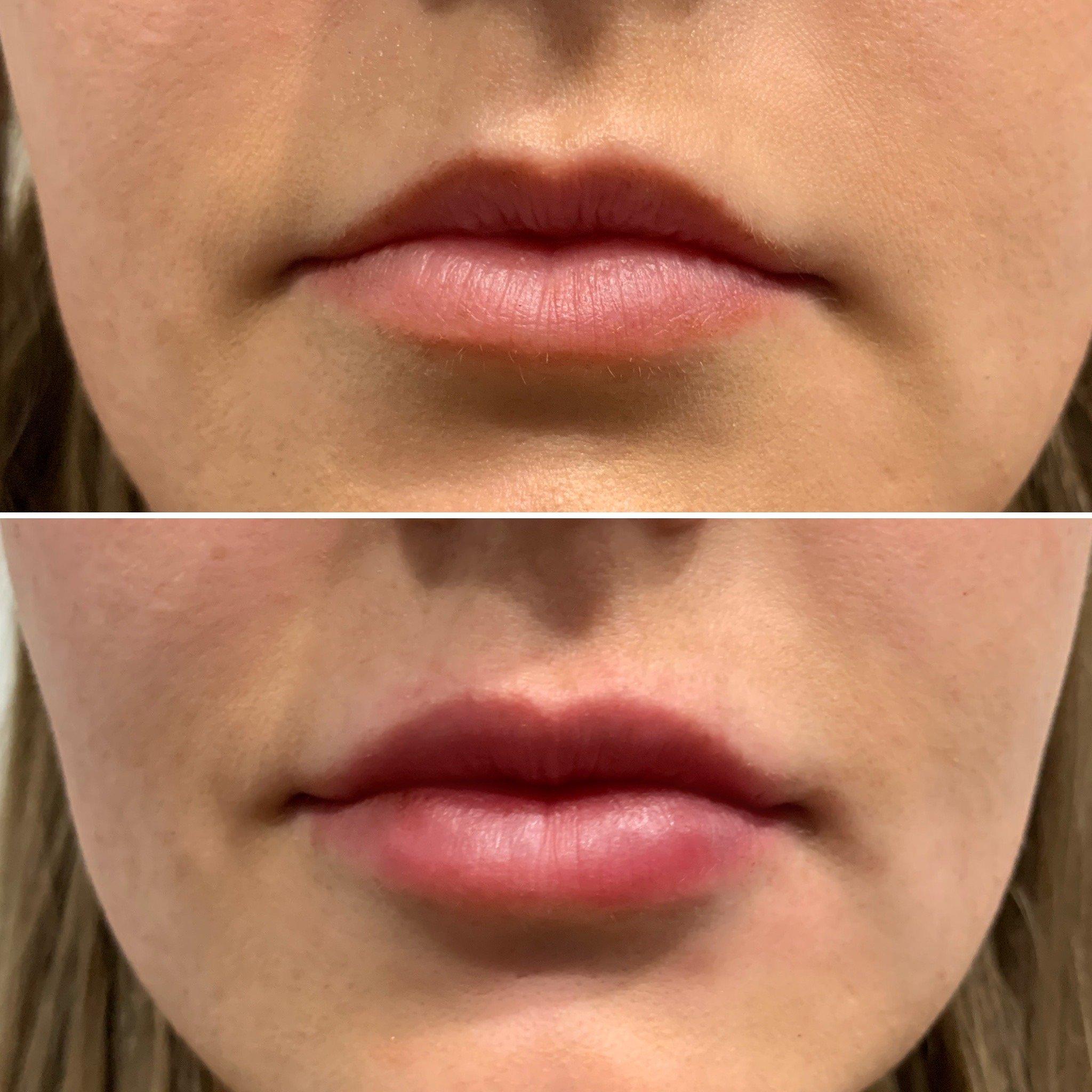 Dermal Fillers, Concept Clinics | Aesthetics & Cosmetic Medicine Melbourne