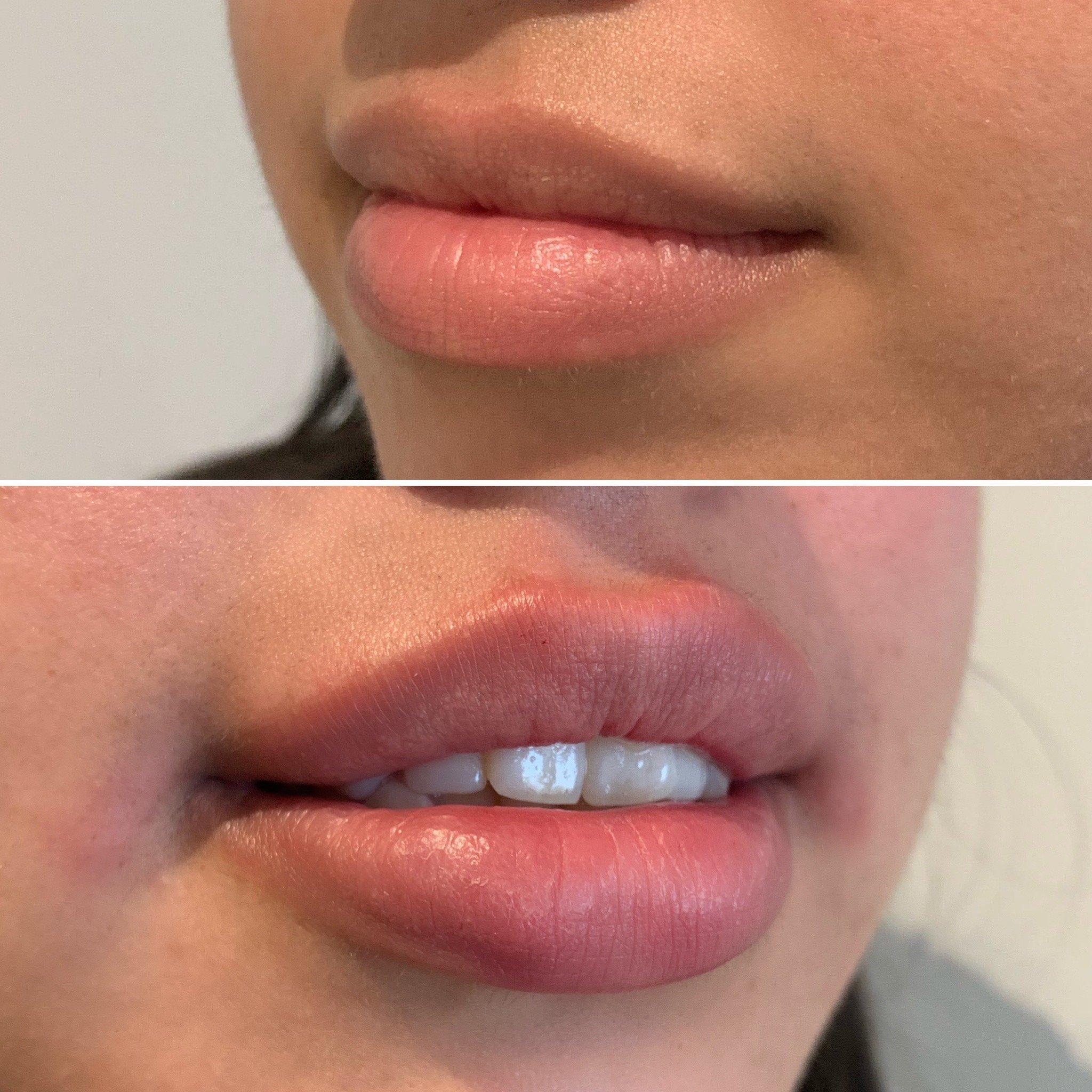 Lip Enhancement, Concept Clinics | Aesthetics & Cosmetic Medicine Melbourne