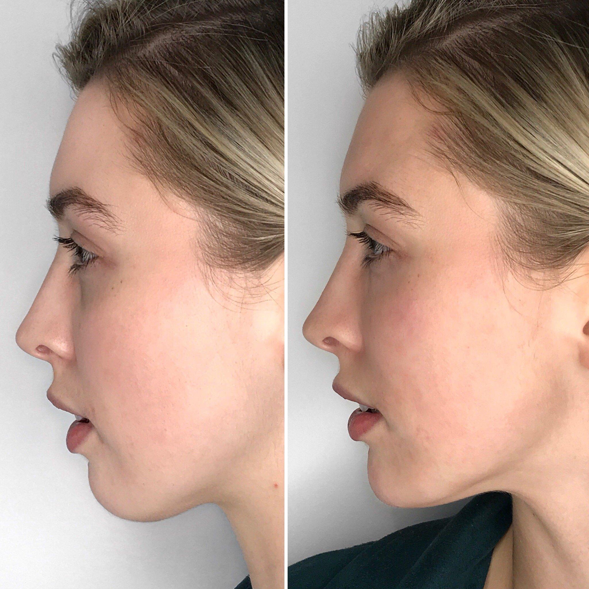 Chin Augmentation, Concept Clinics | Aesthetics & Cosmetic Medicine Melbourne