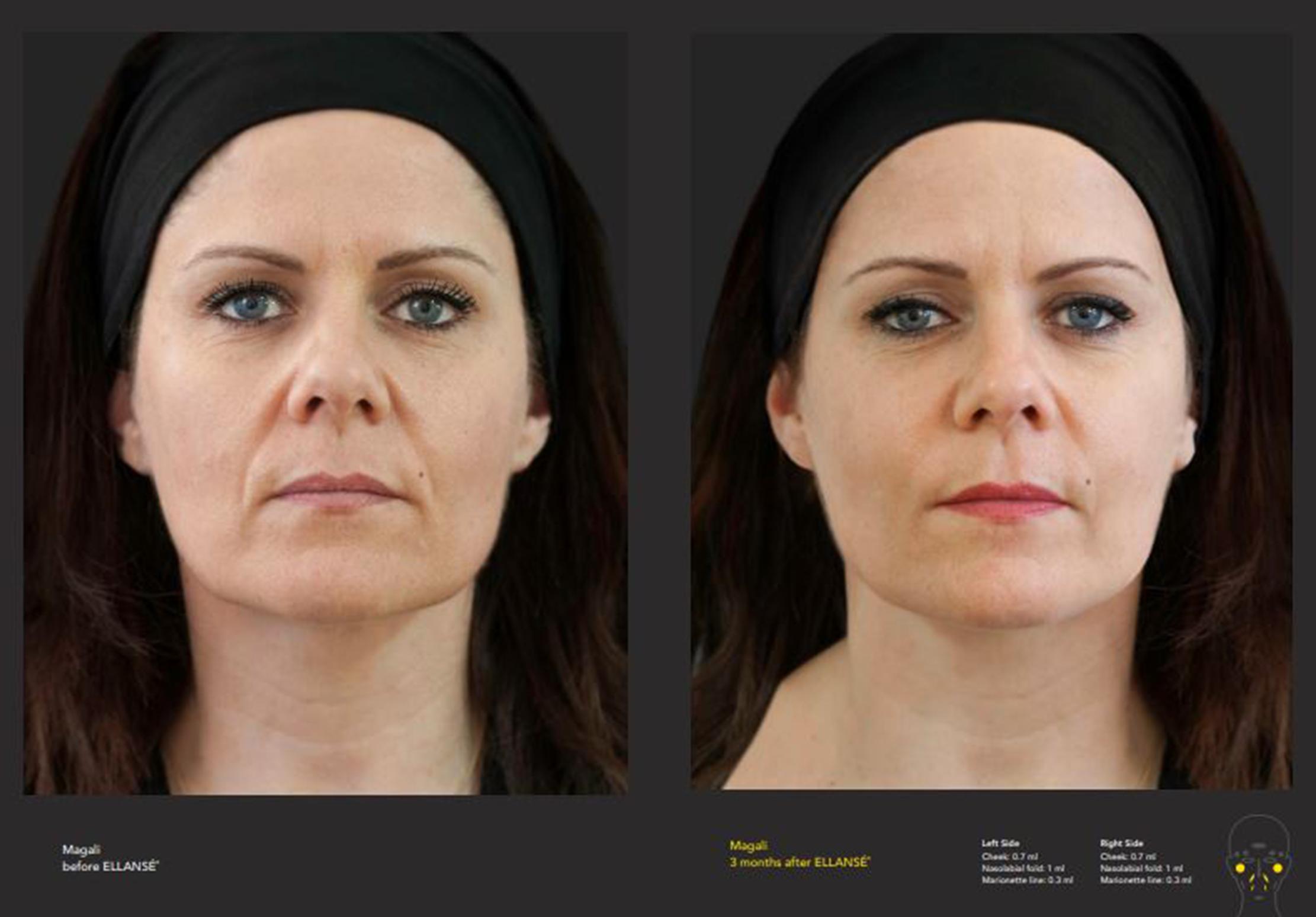 Collagen Stimulating Filler, Concept Clinics | Aesthetics & Cosmetic Medicine Melbourne