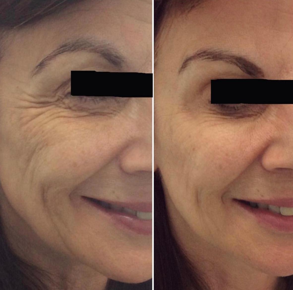 Ageing, Concept Clinics | Aesthetics & Cosmetic Medicine Melbourne