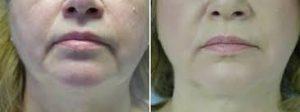 Fifties, Concept Clinics | Aesthetics & Cosmetic Medicine Melbourne