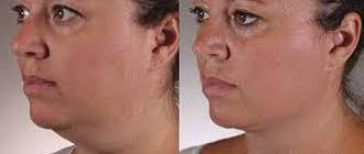 Your Treatment, Concept Clinics | Aesthetics & Cosmetic Medicine Melbourne