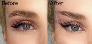 Fox Eye Lift, Concept Clinics | Aesthetics & Cosmetic Medicine Melbourne