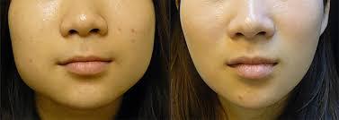 Jawline Slimming, Concept Clinics | Aesthetics & Cosmetic Medicine Melbourne