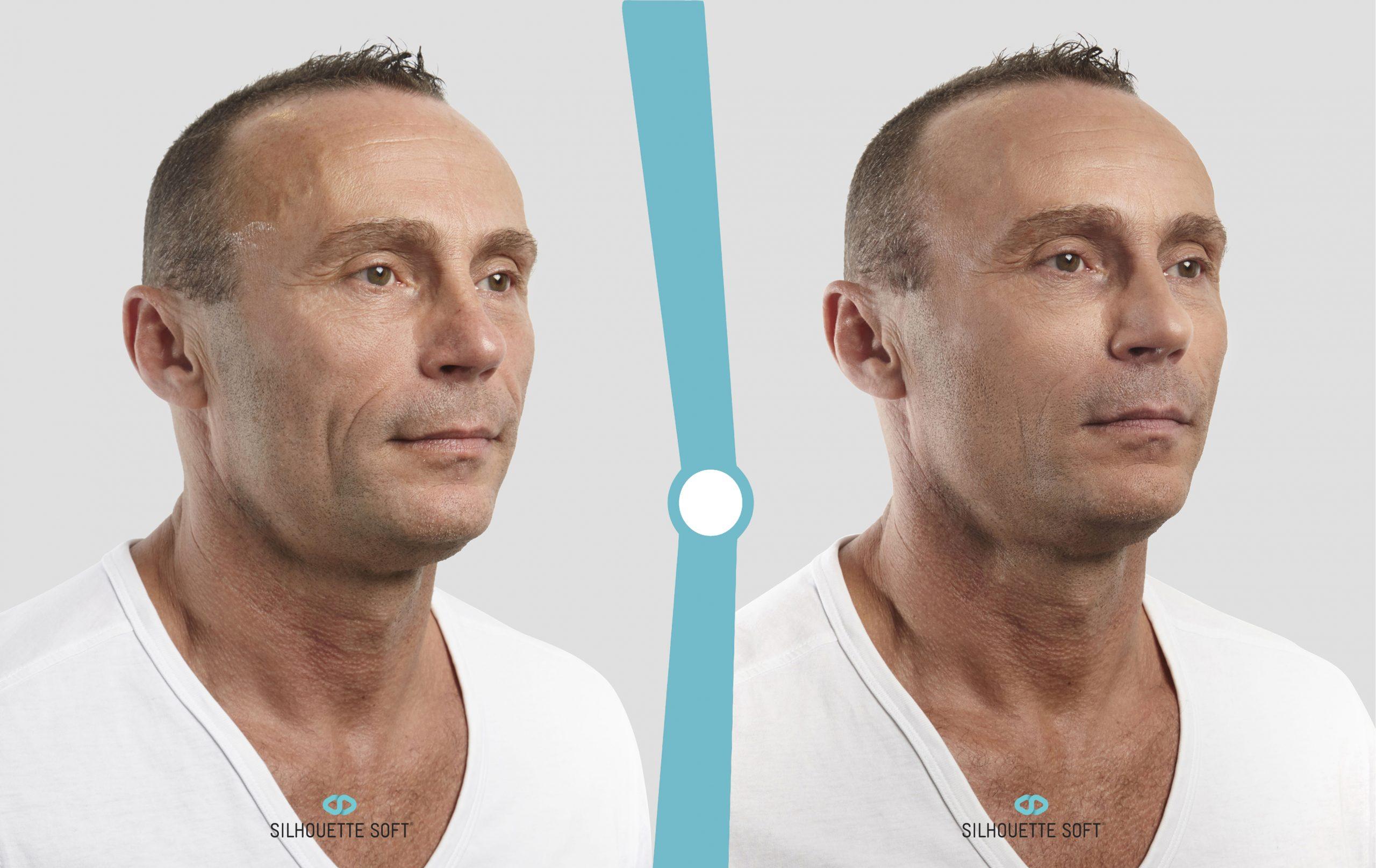 Sagging Skin, Concept Clinics | Aesthetics & Cosmetic Medicine Melbourne