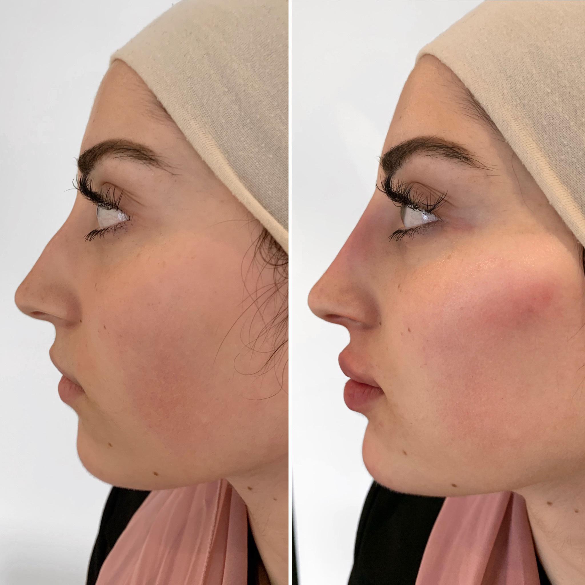 Profile-plasty, Concept Clinics | Aesthetics & Cosmetic Medicine Melbourne