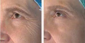 Sixties+, Concept Clinics | Aesthetics & Cosmetic Medicine Melbourne