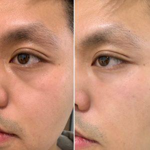 Aging Concerns for Men, Concept Clinics | Aesthetics & Cosmetic Medicine Melbourne