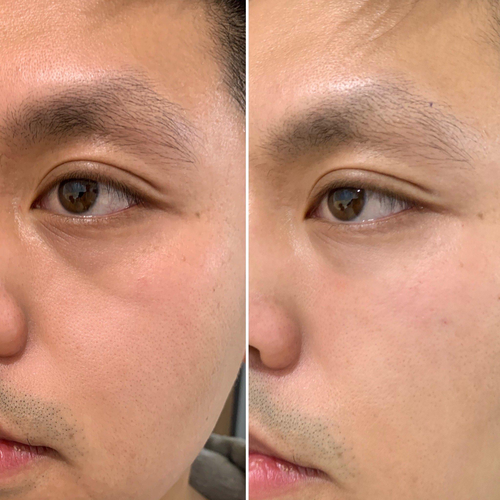 Men's Under Eyes, Concept Clinics | Aesthetics & Cosmetic Medicine Melbourne